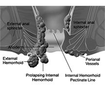 Internal_and_external_hemorrhoids