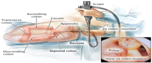 Colonoscopy-screening-for-colon-cancer.-when-should-you-get-checked-2